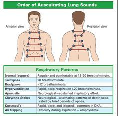 6599d546afb0b3bb68b10d1ab69bdcdd order of auscultating lung sounds emt school lung sounds