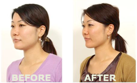Face Yoga Forget Botox Start And Combat Aging Before After Pics Included