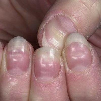 Fingernail Health Problems Nail Problems Nail Health Signs Fingernail Health Signs