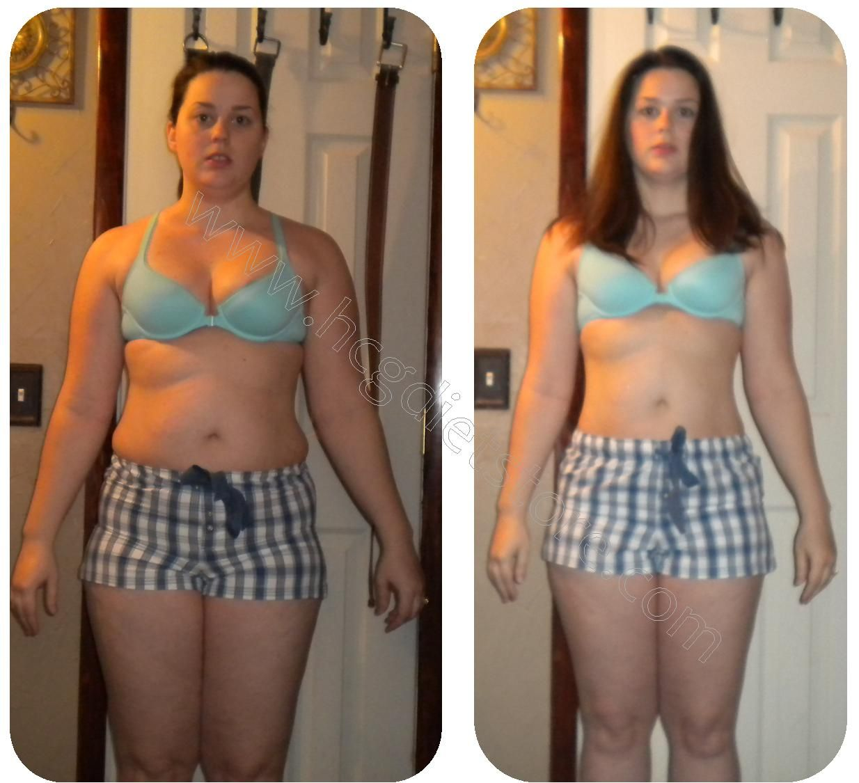 Weight loss surgery dayton oh picture 6