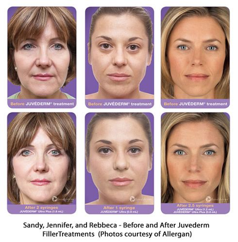 Dermal Fillers Before And After Dermal Fillers Homemade Acne Treatment Acne Scar Diy