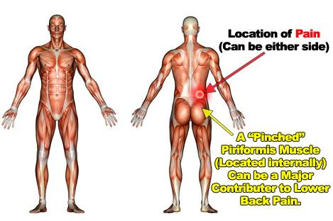 weak back muscles symptoms | Works for both sharp and excruciating ...