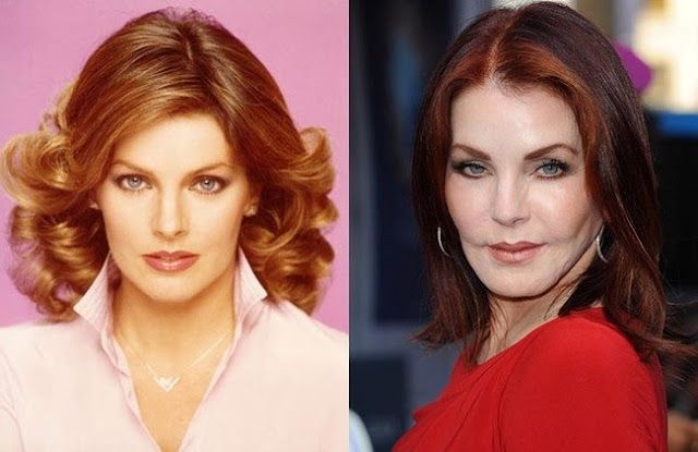 10 Worst Cases Of Celebrity Plastic Surgery Gone Wrong