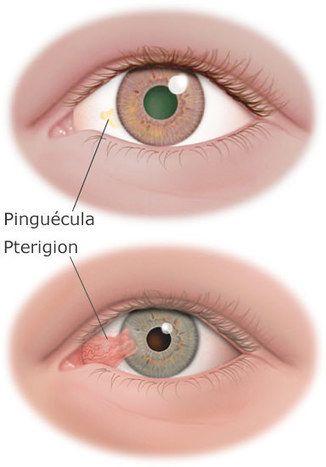 diabetes límite de smutne oczy