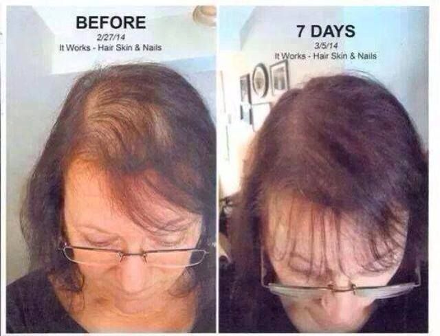 Look at these AMAZING results from Hair, Skin, Nails by It Works ...