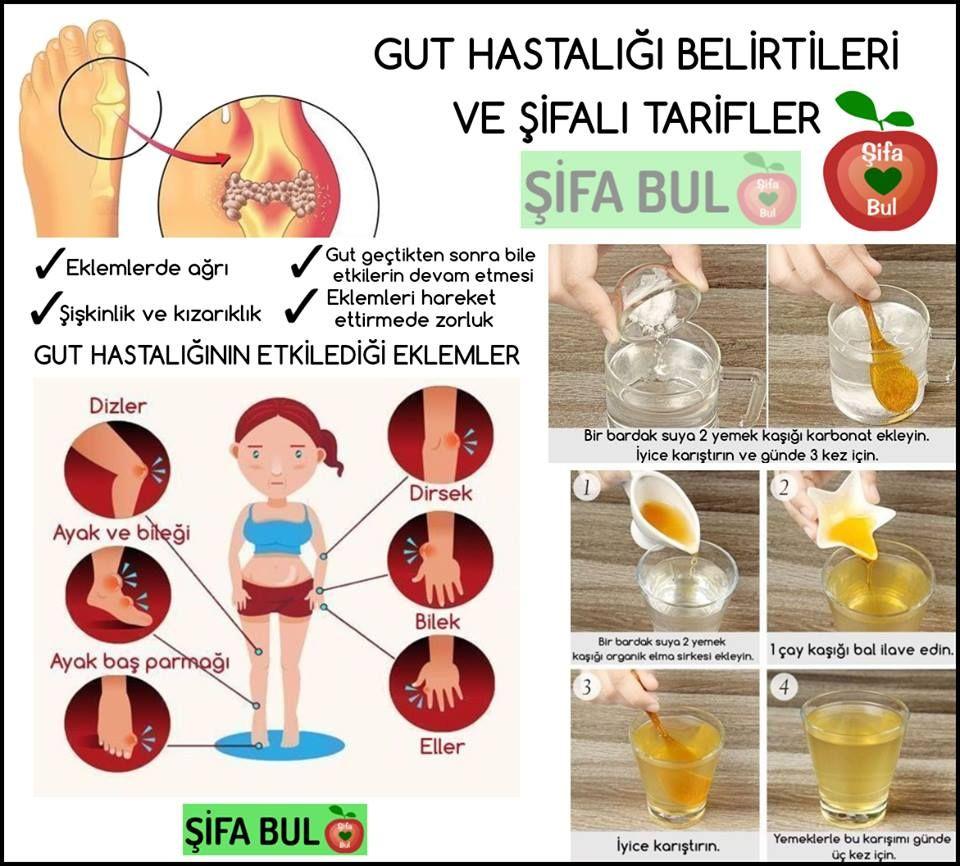 Gut Ağrısı Nasıl Geçer: Gut Ağrısına Doğal Çözüm