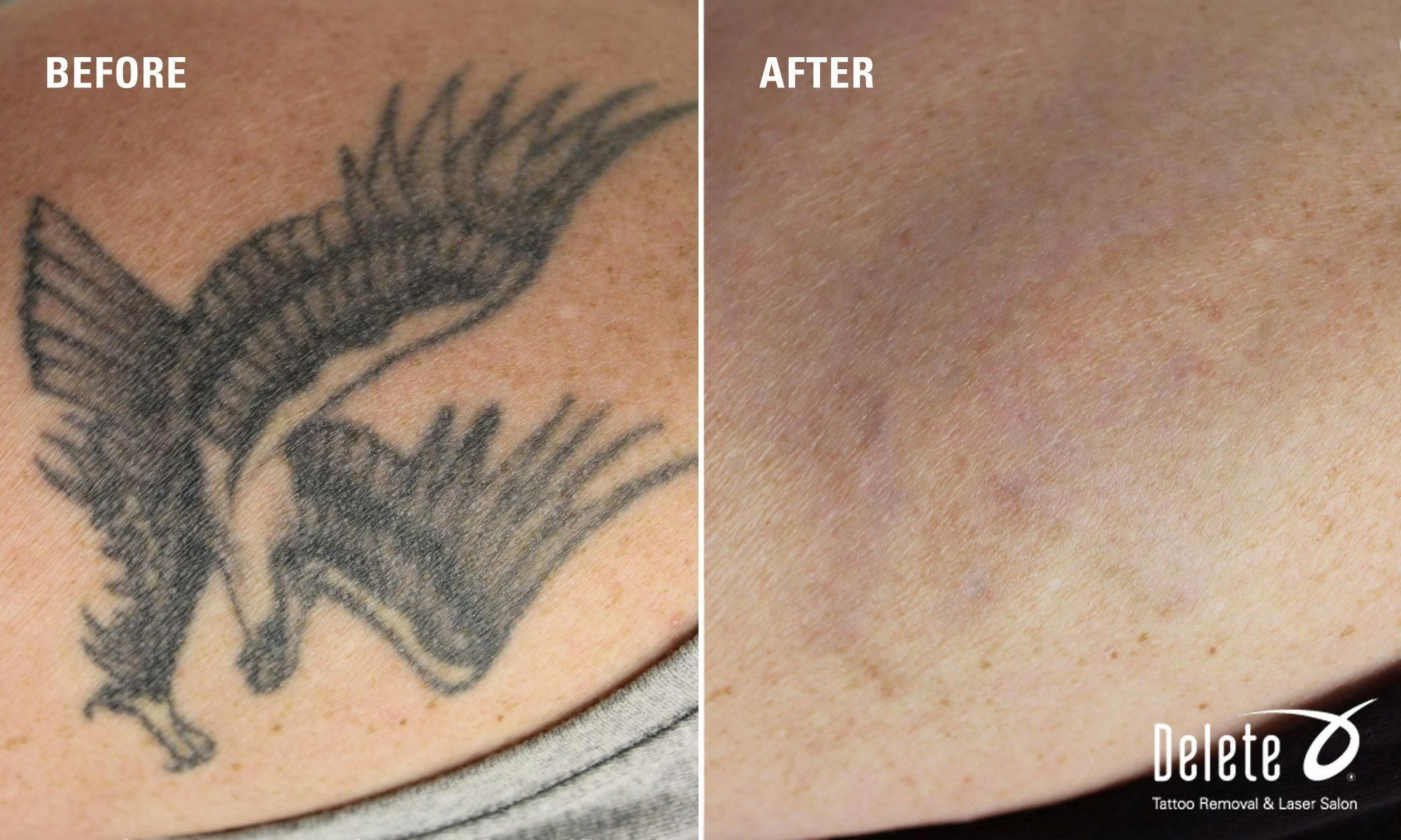 Weekend Is Over Time For Monday S Before After Tattoo Removal At Delete Tattoo Removal And Laser Salon Tattoo Removal Cost Tattoo Removal Laser Tattoo