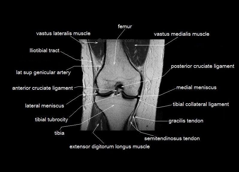 MRI knee Unidad Especializada en Ortopedia y
