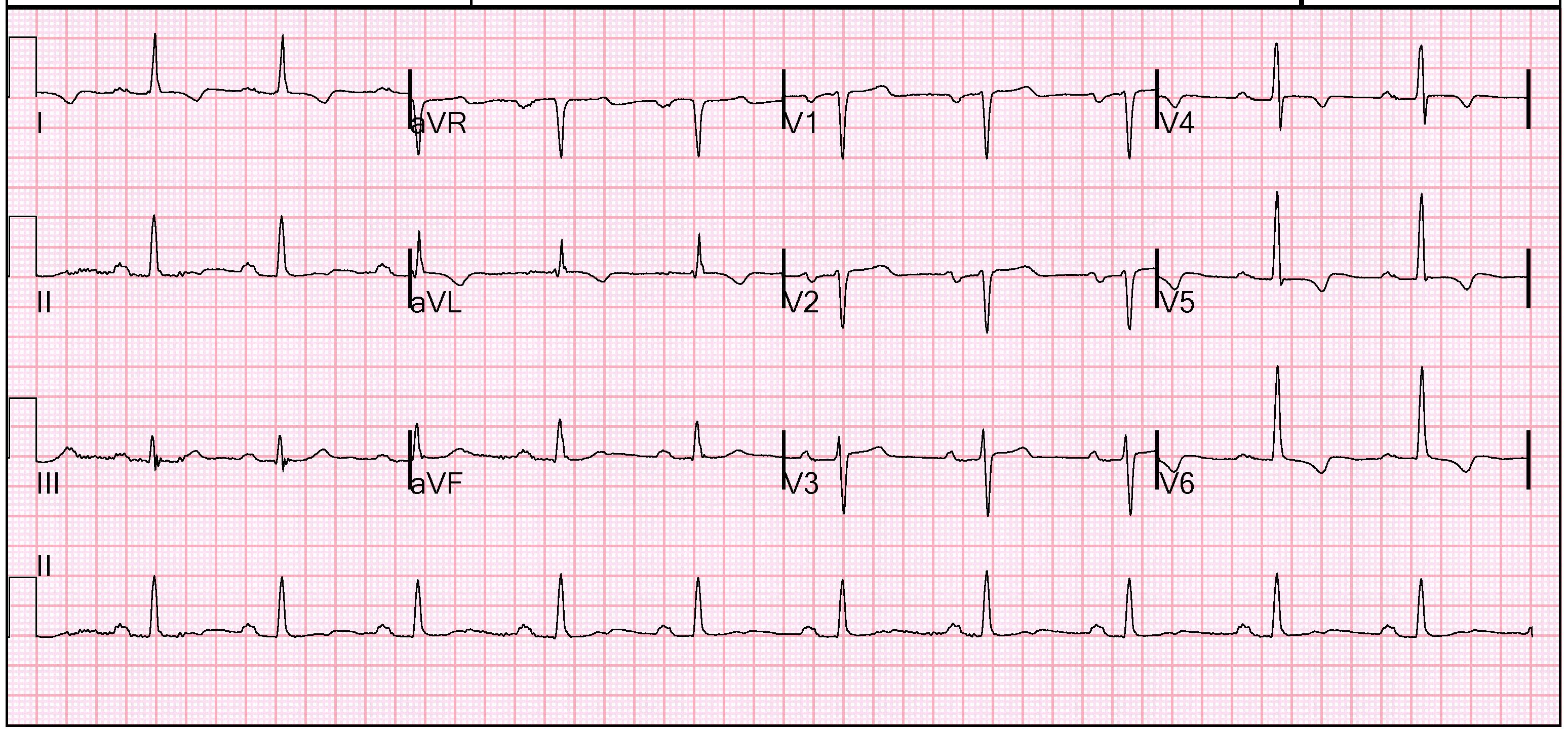 image result for images of normal 12 lead ecg rhythm on ecg strip [ 3096 x 1444 Pixel ]