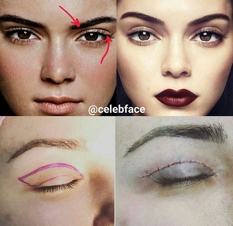 Kendall Jenner #blepharoplasty #eyelid #surgery | fyi in