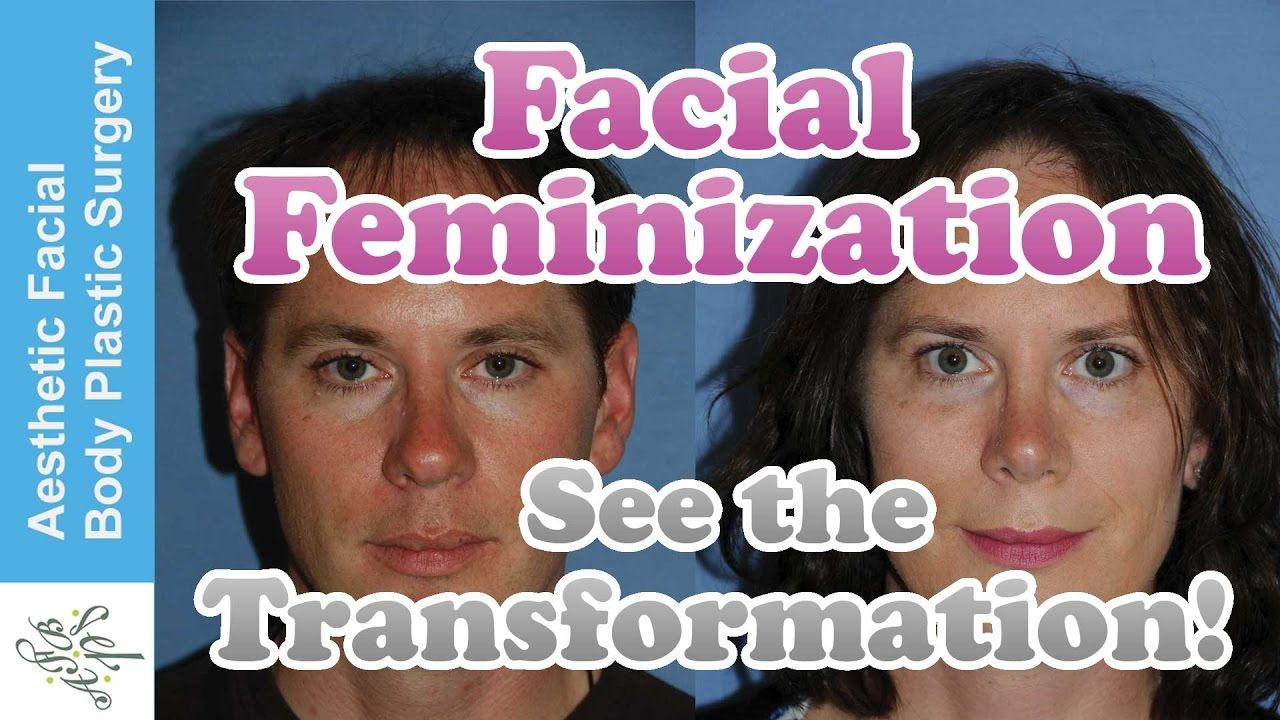 This Is Our Latest Transgender Facial Feminization Ffs -9939
