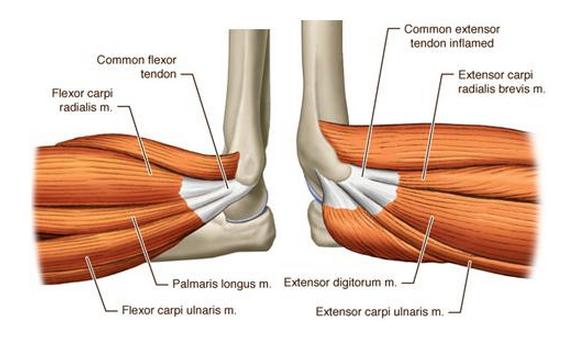 Common Flexor Tendon Flexor Carpi Radialis Palmaris Longus
