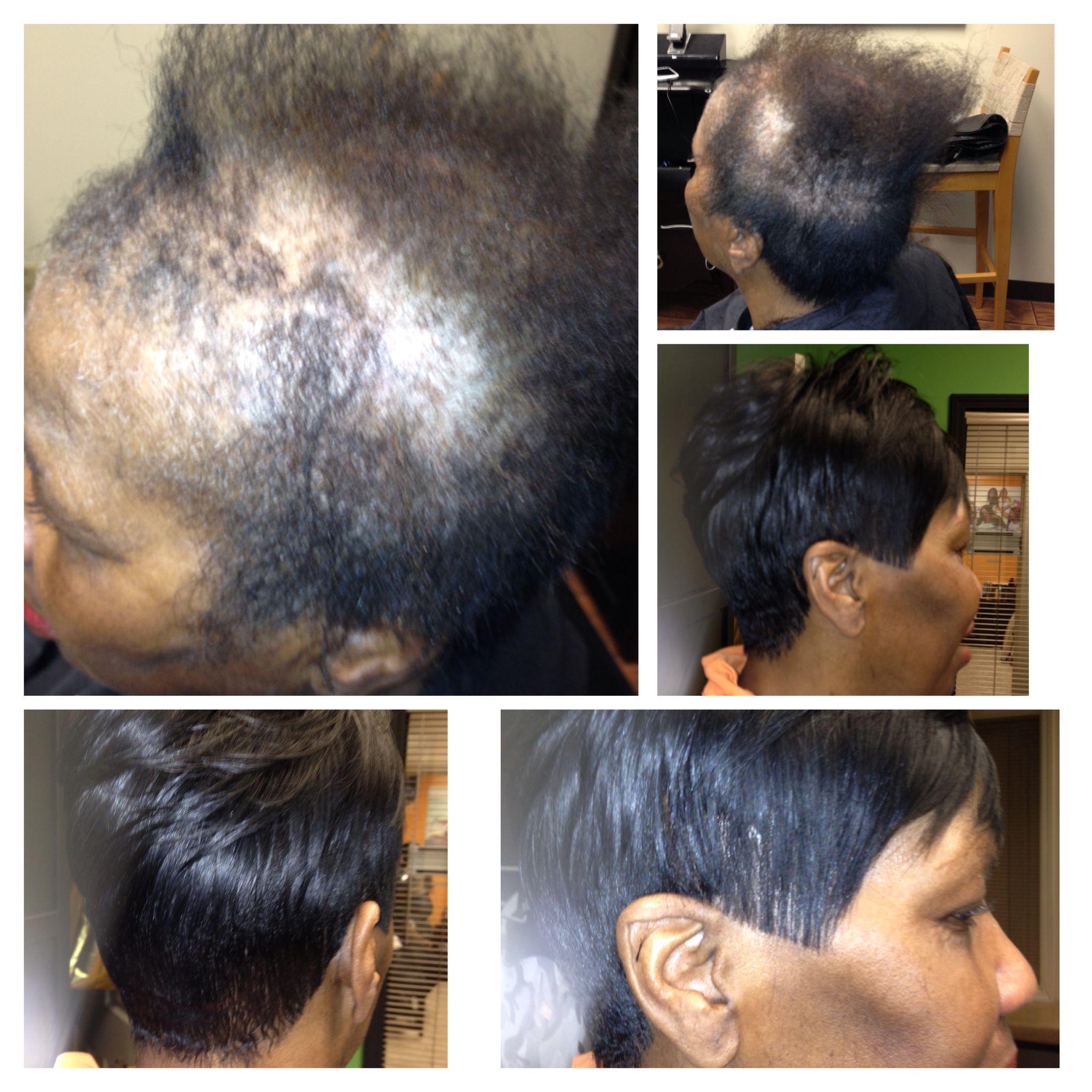 full custom sewin 'no glue' natural looking sewin thinning hair