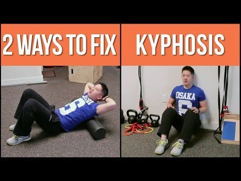 best sleeping position for kyphosis  aline art