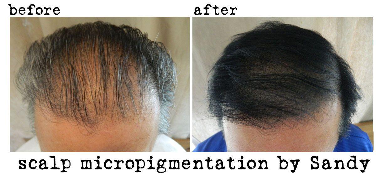 Pin On Scalp Micropigmentation