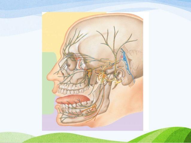 neurinoma del acustico y nervio facial - Buscar con Google