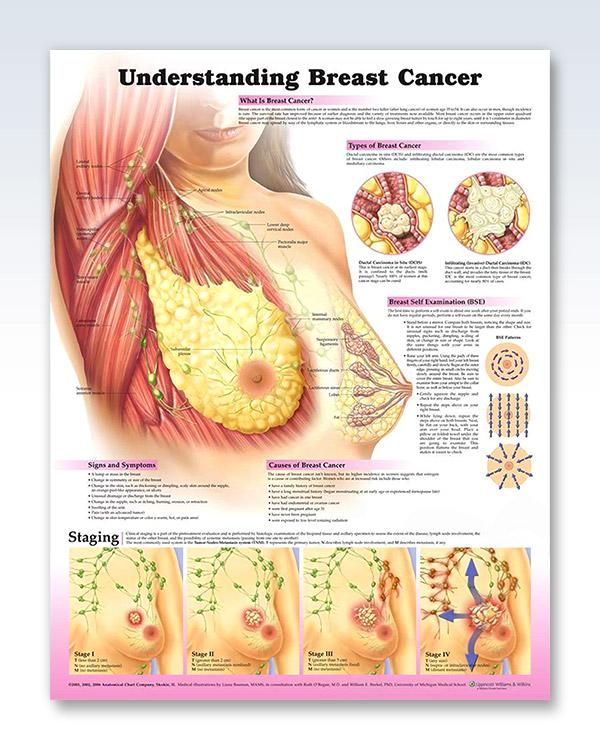Understanding Breast Cancer 20x26 Anatomy Medical And Med School