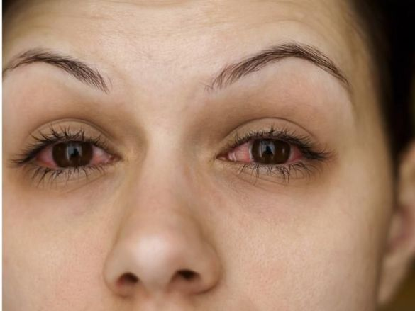 Image result for Dry Eyes and Mouth due to Fibromyalgia