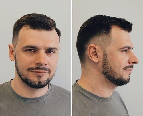 Peinados para hombres semicalvos