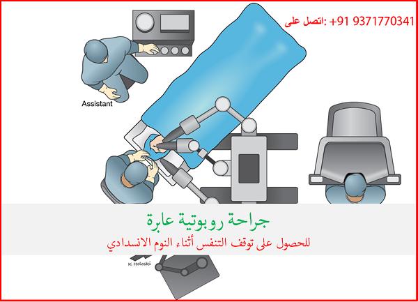 المرضى العرب يحصلون على فوائد الجراحة الروبوتية من أجل توقف التنفس الانسدادي أثناء النوم في الهند Robotic Surgery Sleep Apnea Surgery