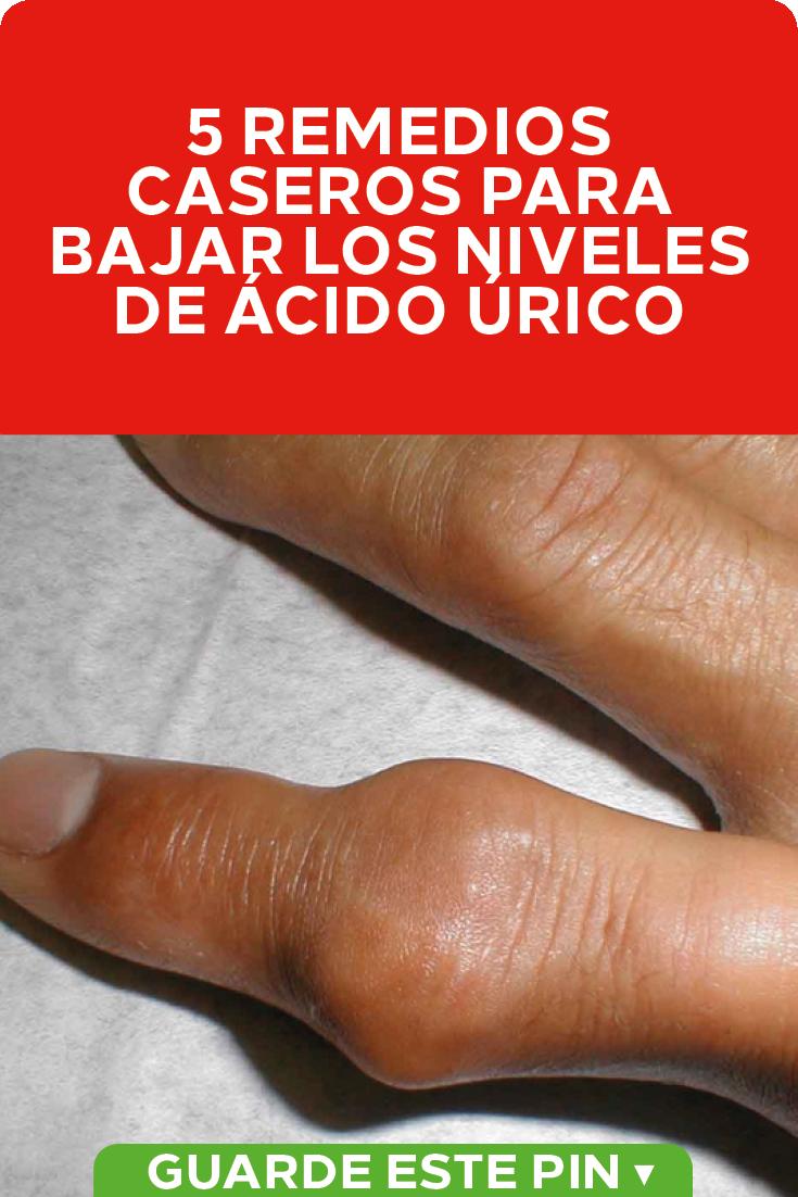 Que bajar los niveles de acido urico