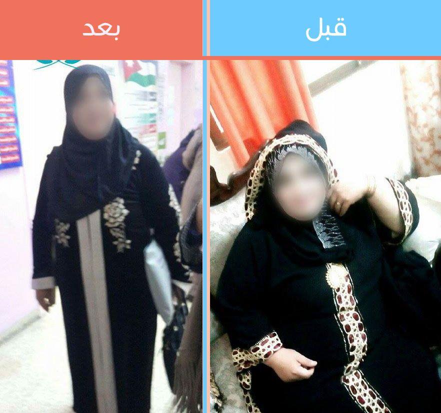 أفضل أخصائي حراحة السمنة في الأردن وعمان وقصص حقيقية Fashion Hijab