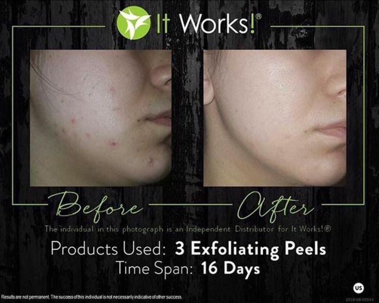 Exfoliating Peel It Works Amazing Results Exfoliating Peel Natural Exfoliant Skin Care Toner Products