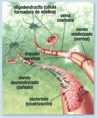 Ejercicio Fisico En Personas Con Esclerosis Multiple Esclerosis Multiple Esclerosis Esclerosis Multiple Diagnostico
