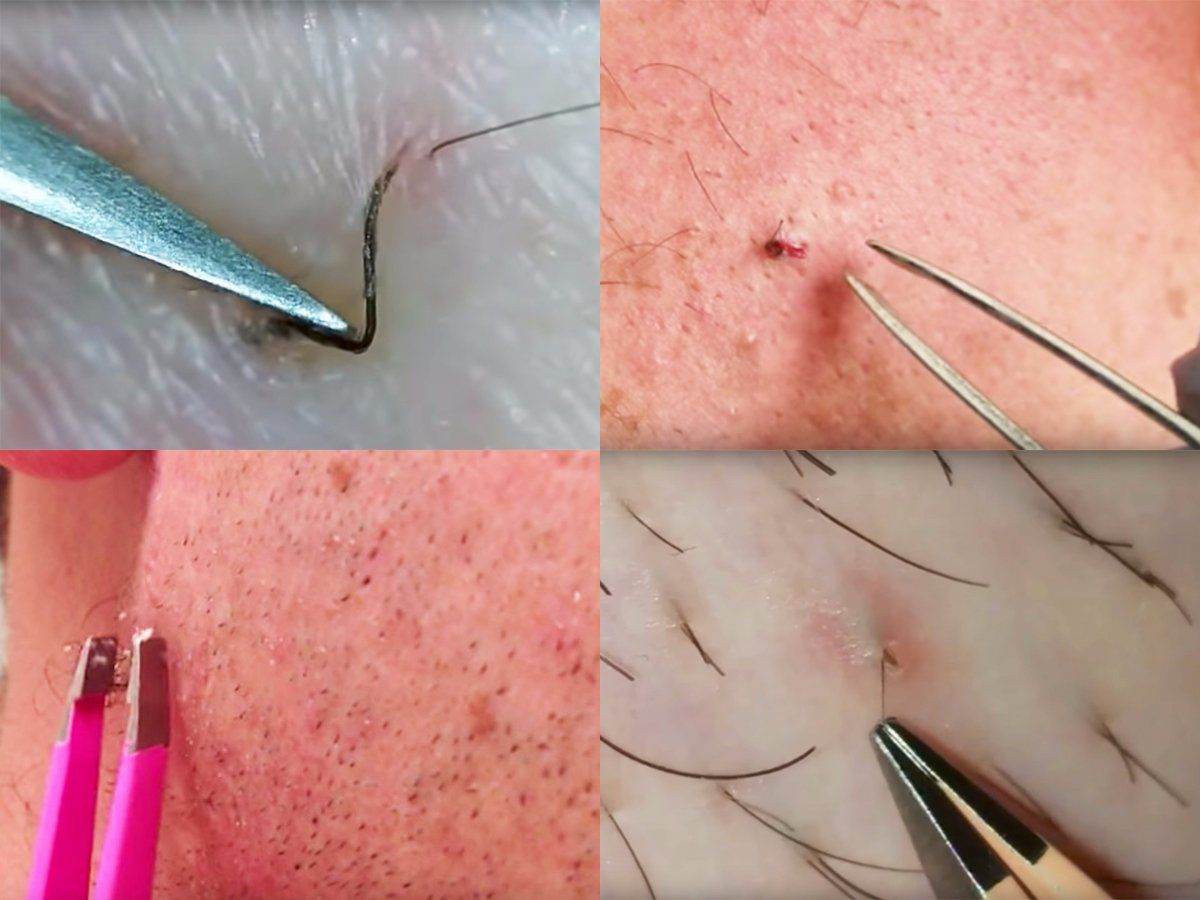 These are best most satisfying ingrown hair removal videos on the
