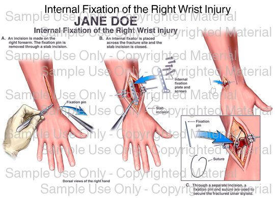 Loading: \'Internal Fixation of the Right Wrist Injury\' - Please wait ...