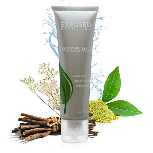 Exposed Skin Care Clear Pore Serum Step 3 Maintain Clean And Clear Pores Sale Luxclout Com In 2020 Exposed Skin Care Clear Pores Skin Care