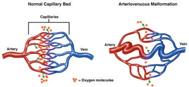 The difference between normal connection of veins and arteries and an AVM