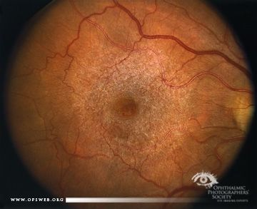 epiretinal membrane and ketogenic diet