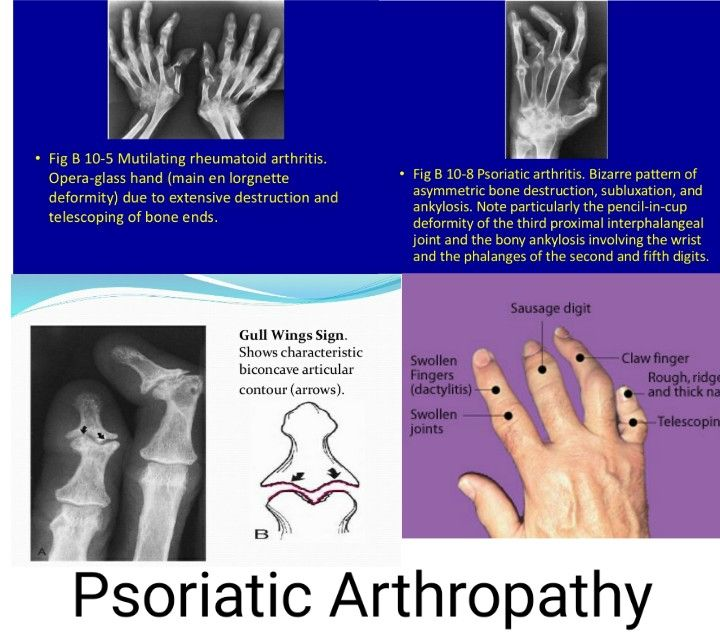 Psoriatic Arthropathy 【Both psoriatric and rheumatoid