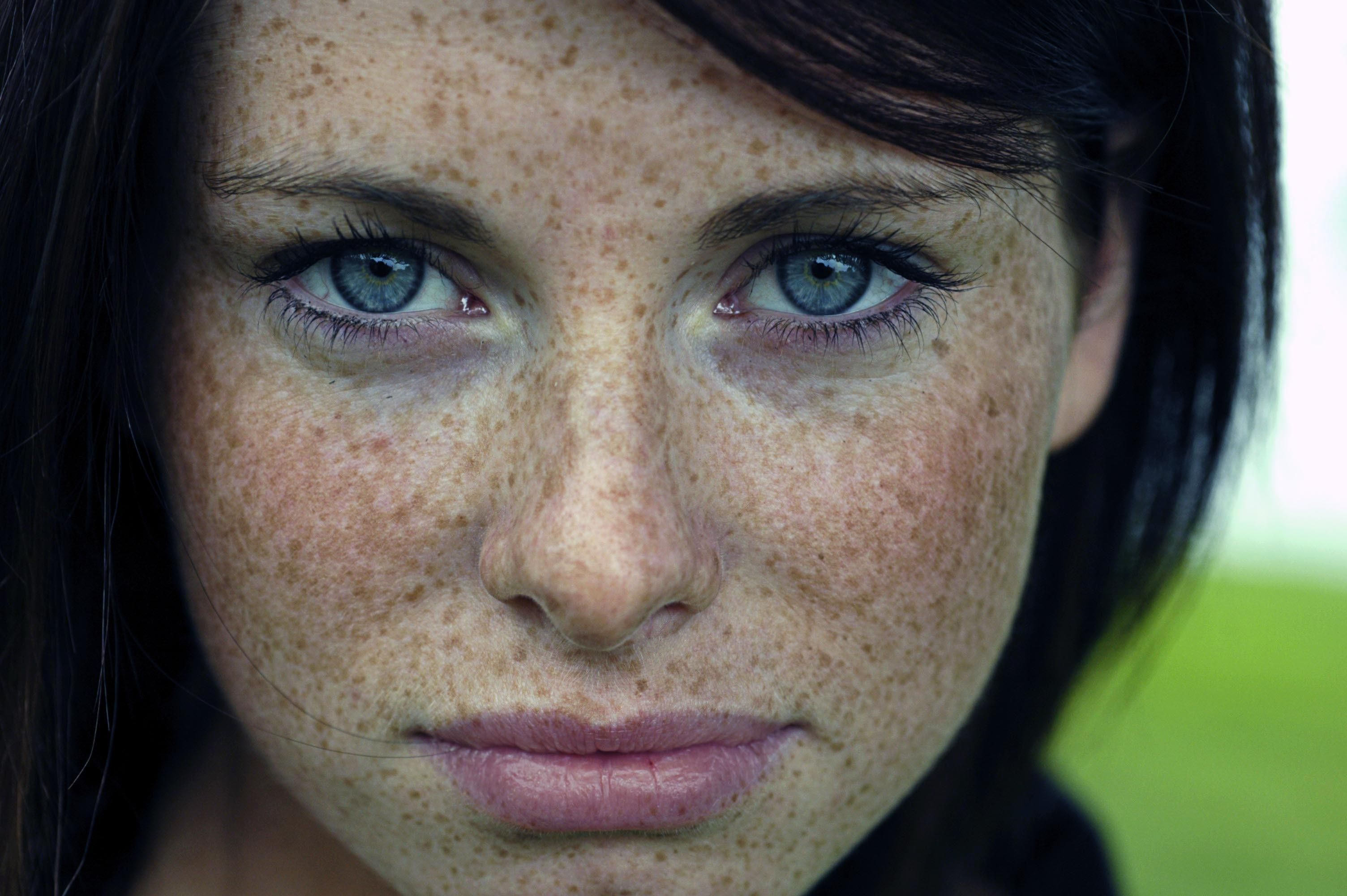 how to get rid of eye freckles