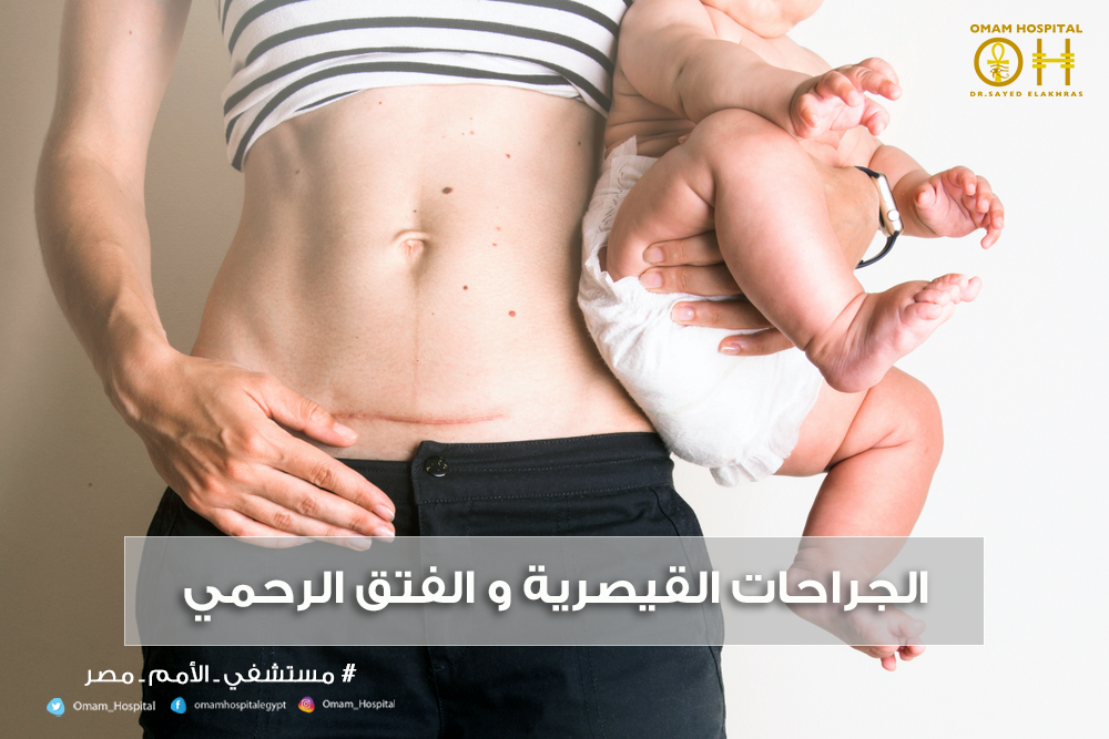 الجراحات القيصرية و الفتق الرحمي النيش تعد الولادة
