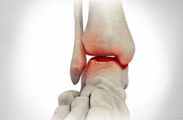 Голеностопный сустав лечение жировики обследование суставов ног