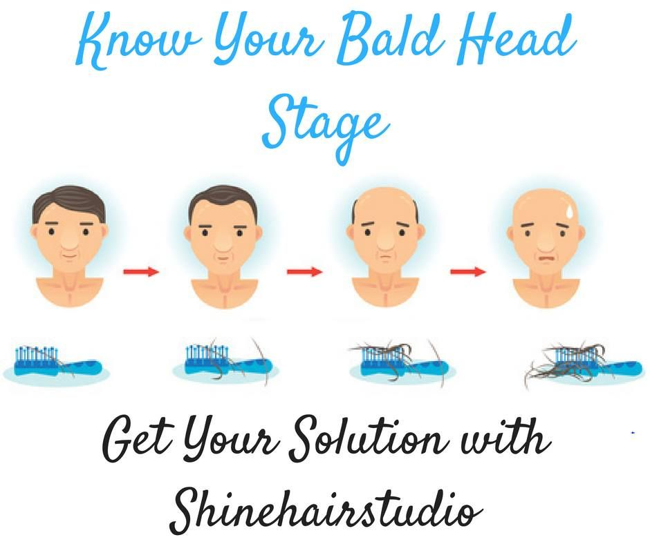 Shinehairstudio Creates The Best Hair Systems In The World With Their Proprietary Techniques And Staff Of Hair System Art Hair Studio Hair Shine Hair System