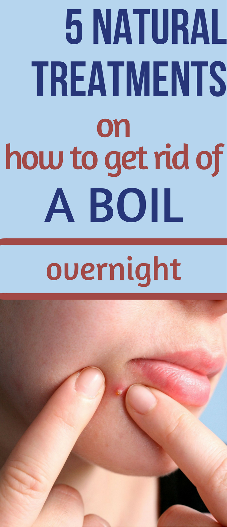 5 Natural Treatments On How To Get Rid Of A Boil Overnight Natural Treatments How To Get Rid Health World