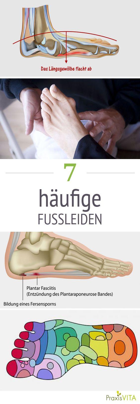 Fersensporn & Co: Die 7 häufigsten Fußprobleme | Natural healing ...