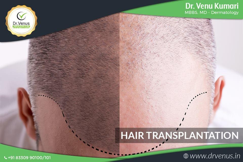 Sign Up Dermatology, Skin care, Linkedin