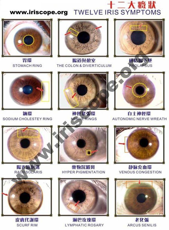 Iridology reading imagesiridology studyiridology eye color images before and after hazel products also rh pinterest
