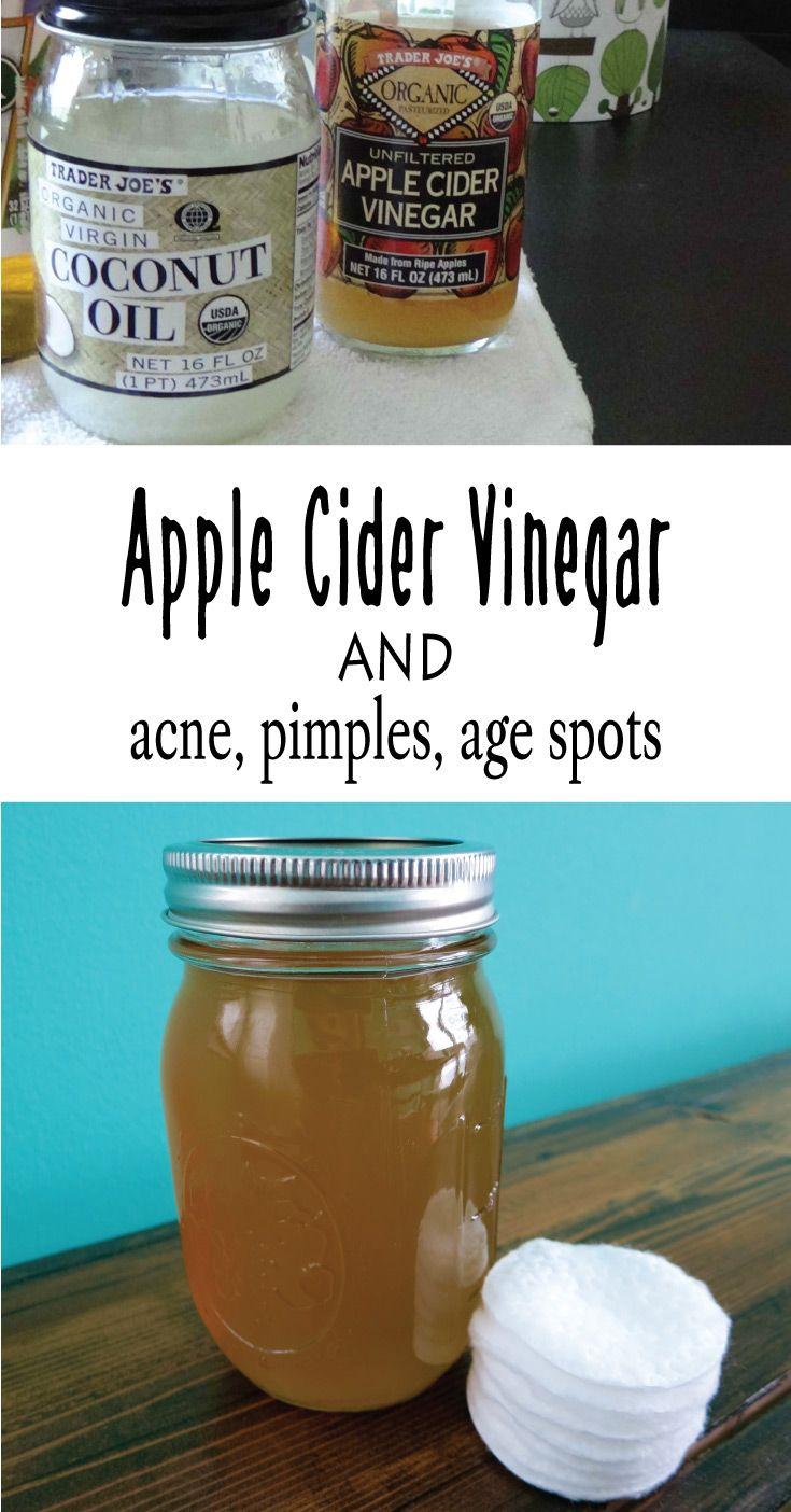 Apple Cider Vinegar and Acne, Pimples, Age spots Vogue