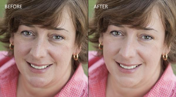 Remove blemishes in lightroom