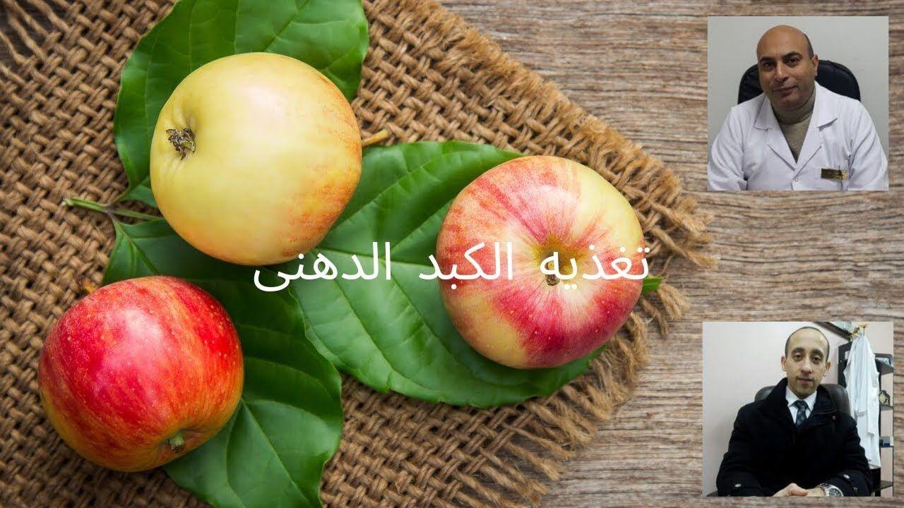 تغذيه مرضى الكبد الدهنى Fruit Apple Ioi