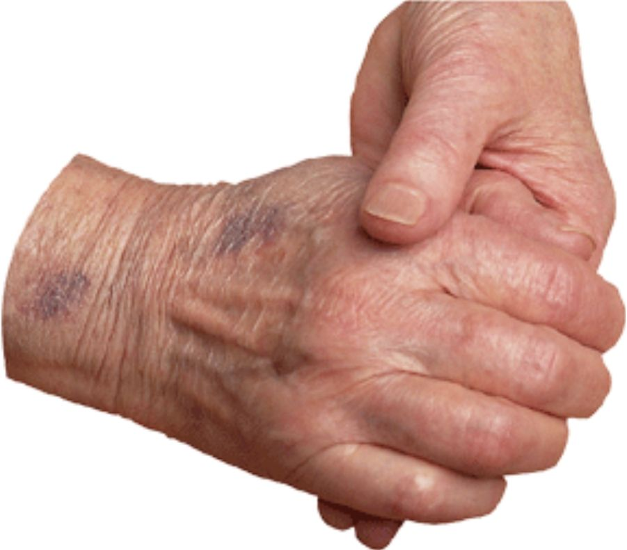 Here you will find hundreds of freshly written articles on a range of subjects most important to family caregivers.  These are updated weekly.