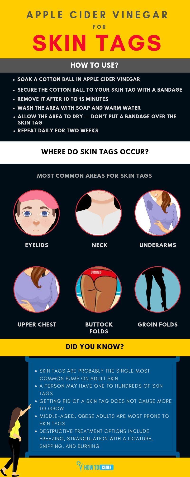 Apple Cider Vinegar for Skin Tags - How Does It Work? #skintagremedy