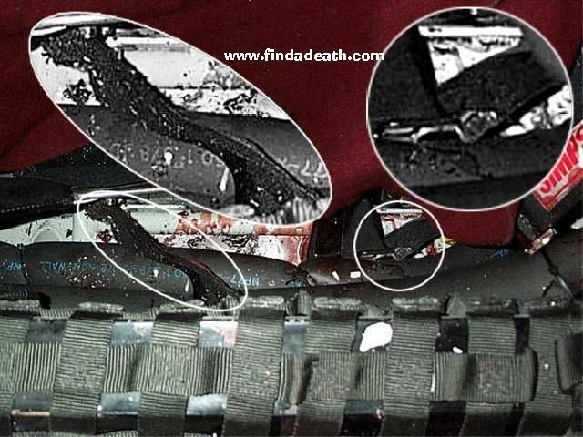 Dale autopsy photos earnhardt