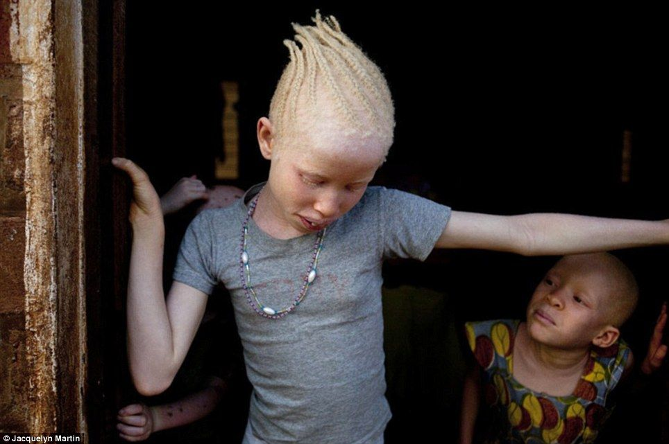 Photo of Albino children/jacquelyn martin tribe of ghosts