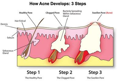 how acne develops  pinterest